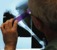 dr prowse measure